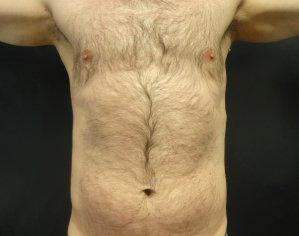 Manhattan liposuction after 16